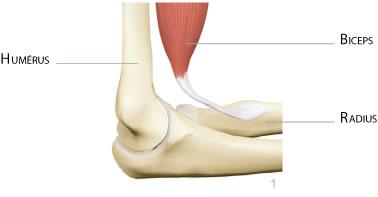 coude rupture distale biceps