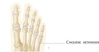 ostéotomie percutanée du 5ème métatarsien